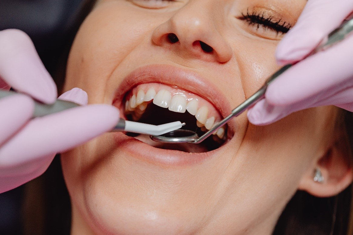 6 Things You Should Know Before Choosing an Implant Dentist